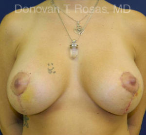 Breast Lift Photo - Patient 4 - After 1