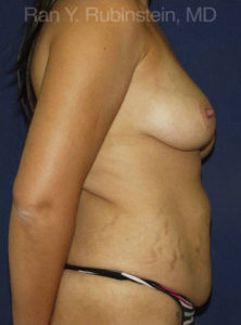 Breast Lift Photo - Patient 1 - Before 1