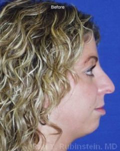 Chin Augmentation Photo - Patient 2 - Before 2