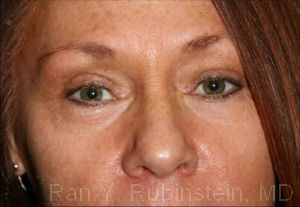 Eyelid Surgery Photo - Patient 5 - After 1