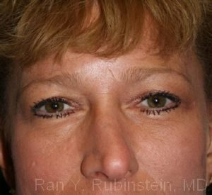 Eyelid Surgery Photo - Patient 6 - Before 1