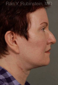 Face Lift & Neck Lift Photo - Patient 2 - After 2
