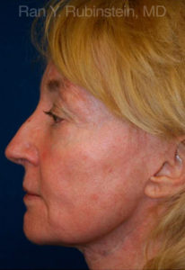 Sculptra Photo - Patient 1 - After 1
