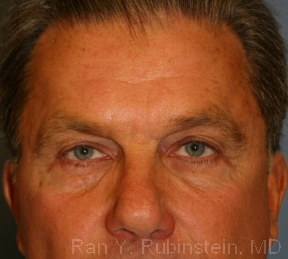 Non-Surgical Skin Tightening Photo - Patient 5 - After 1