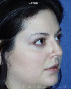 Rhinoplasty Photo - Patient 3 - After 1