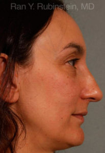 Rhinoplasty Photo - Patient 3 - Before 1