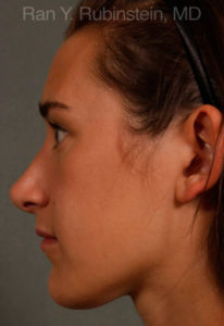 Rhinoplasty Photo - Patient 5 - After 2