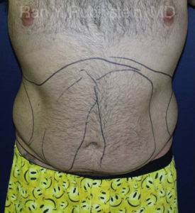 Smart Lipo Body Photo - Patient 1 - Before 1