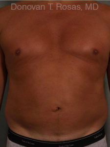 Smart Lipo Body Photo - Patient 8 - After 1