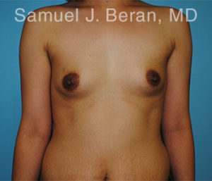 Breast Augmentation Photo - Patient 9 - Before 1