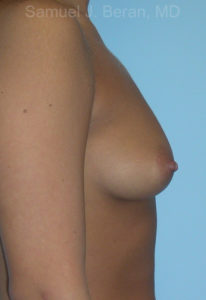 Breast Augmentation Photo - Patient 7 - Before 2