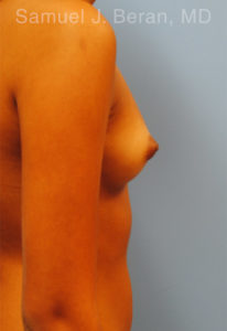 Breast Augmentation Photo - Patient 1 - Before 2