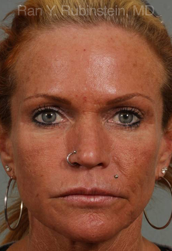 botox-photos Before
