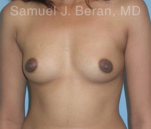 breast-augmentation-photos Before