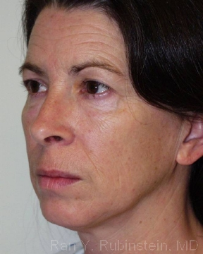 skin-tightening-photos Before